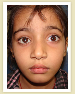 Artificial Eye in india,artificial eye in punjab, Eye prosthesis in india, artifical eyes, artificial eye jalandhar,artificial eye in punjab,Eye prosthesis in jalandhar,Eye prosthesis in punjab