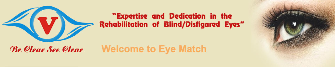 welcome to artificialeye.co.in, Artificial Eye in india,artificial eye in punjab, Eye prosthesis in india, artifical eyes, artificial eye jalandhar,artificial eye in punjab,Eye prosthesis in jalandhar,Eye prosthesis in punjab